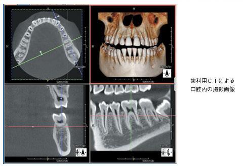 歯周病診査・診断を重視した患者ごとに最適な治療を