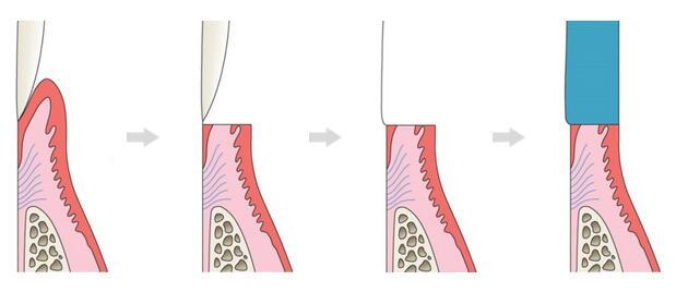 歯周病・虫歯を予防できます