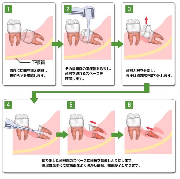 智歯抜歯時の薄い骨壁への対応
