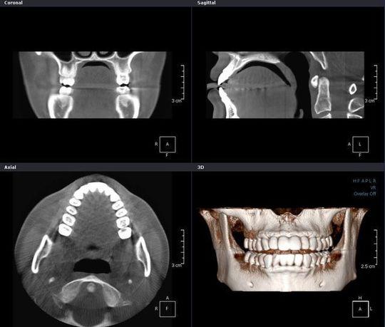 歯科CTで何がわかるか